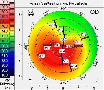 Kertokonus Axiale Sagittale Krümmung der Hornhaut Vorderfläche