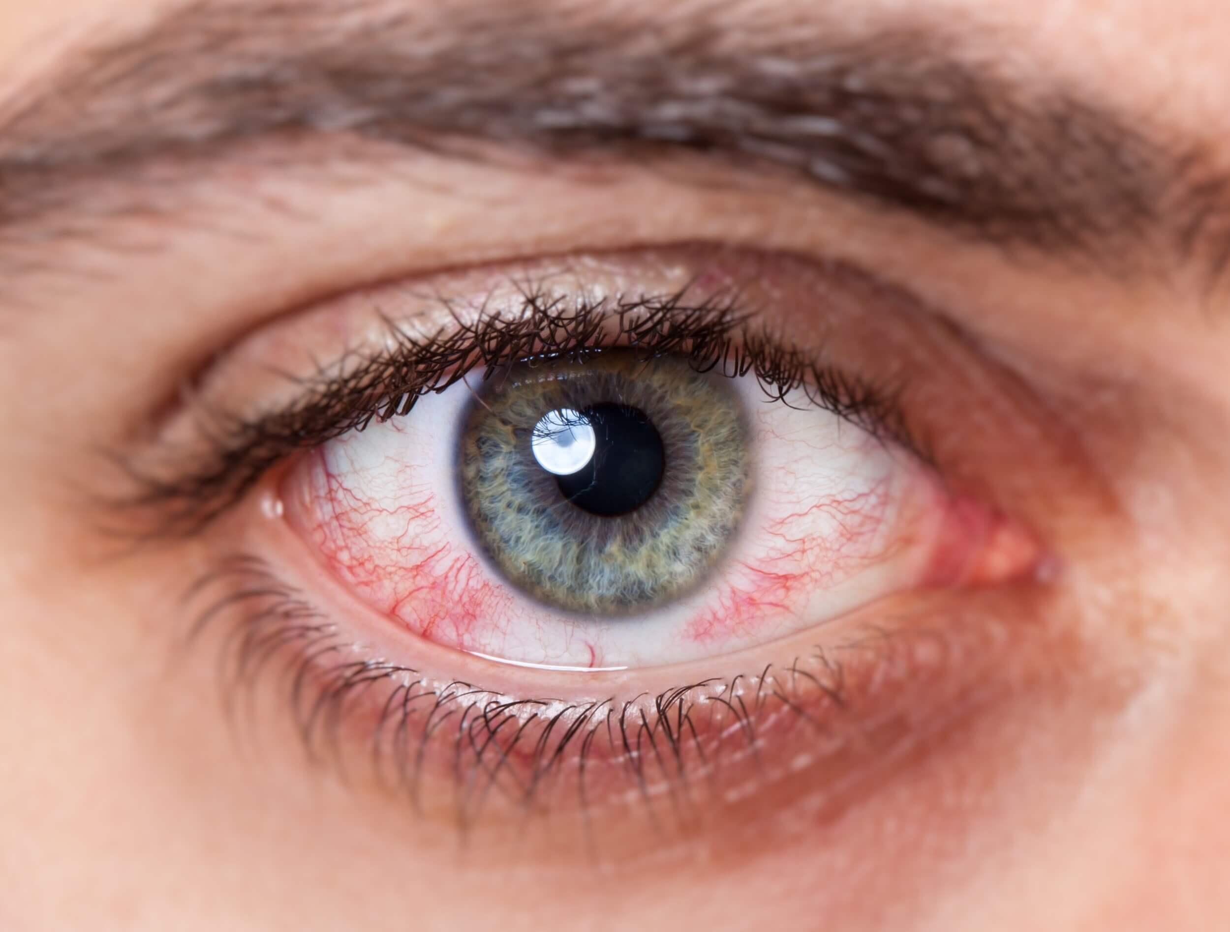 Mann mit rotem Auge und Keratokonus verträgt keine Kontaktlinsen mehr.