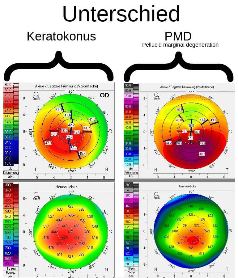 Unterschied Keratokonus / Keratotorus PMD