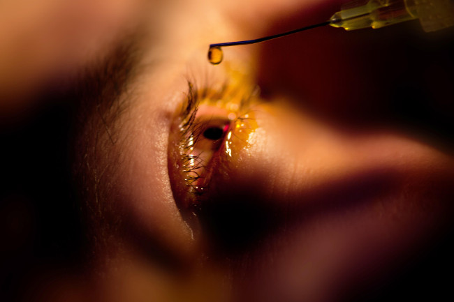 UV-Crosslinking ist die erste Stufe der Keratokonus-Behandlung