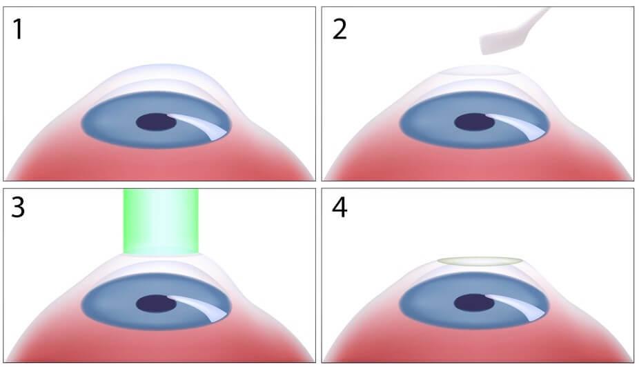 Beim klassischen Epi Off Crosslinking wird die Schutzschicht der Hornhaut mechanisch entfernt