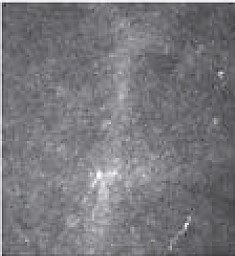 Nervenfaserbilder Oben: Kaum erhaltene Nervenfasern in der Hornhaut 6 Monaten nach klassischem Epi-Off Unten: Erhaltene Hornhaut-Nervenfasern 6 Monate nach EPI-ON-Verfahren.