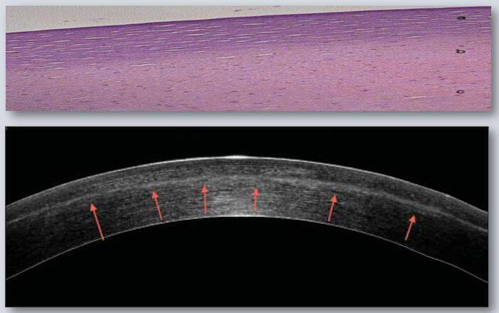 Oben: Histologischer Querschnitt zeigt die Quervernetzung im oberen 1/3 der Hornhaut Unten: OCT-Aufnahme beim einem Patienten nach Crosslinking zeigt deutlich die Verdichtung der Hornhaut