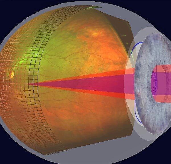 Optomap Netzhautaufnahme - Die 3 dimensionale Analyse der Netzhaut erlaubt die Funktionalität der Netzhaut und die zu erwartenede Sehschärfe abzuschätzen.