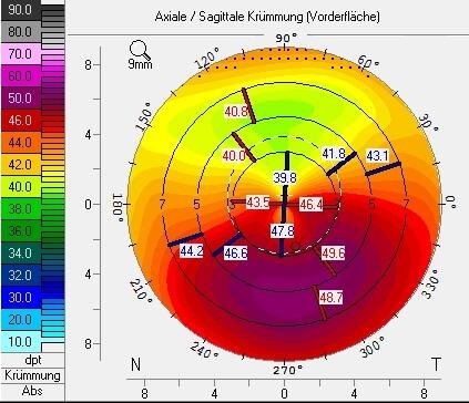 PMD Klassisch Keratororus typische Aufsteilung der Hornhaut nach unten aussen